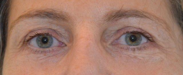 eye liner haut et bas avant