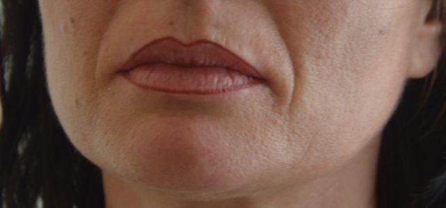 contour de lèvres après
