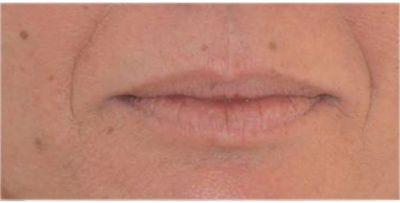 contour de lèvres avant