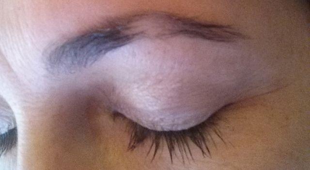 Cicatrice sourcils avant
