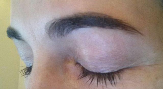 Cicatrice sourcils après